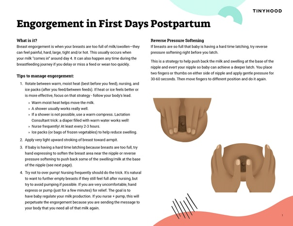 Engorgement in First Days Postpartum Preview Image