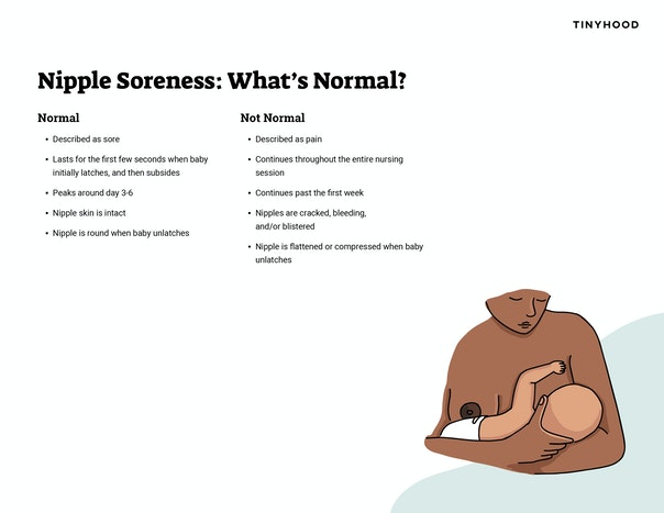 Nipple Soreness: What's Normal? Preview Image